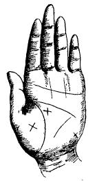 Крест на суставе пальца болит сустав на большом пальце ноги чем лечить