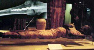 medicinskaja zagadka shtift sovremennogo tipa v noge mumii b0541d7
